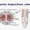 penis-injection-sites